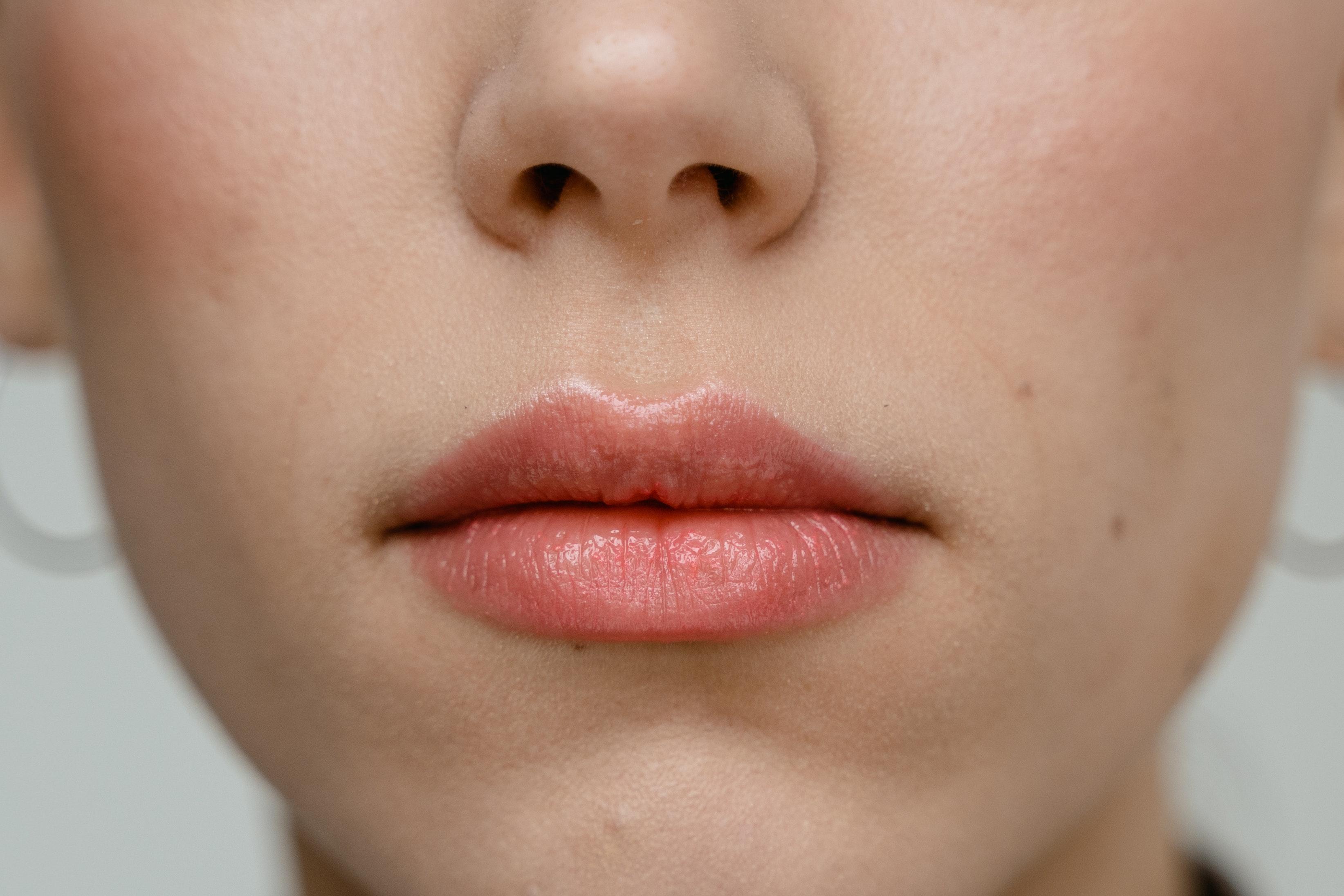 Can You Use Aquaphor On Lips